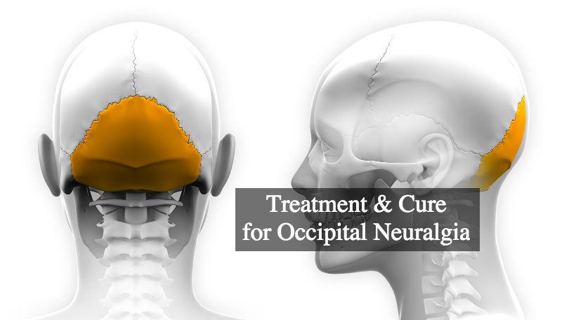 Treatment Amp Cure For Occipital Neuralgia