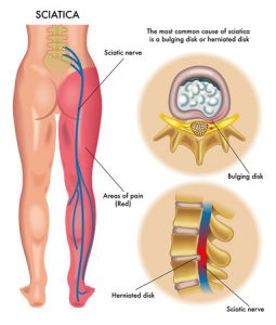 10 Tips to Relieve Sciatic Nerve Pain_2